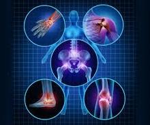 artrit gurkmeja ledinflammation