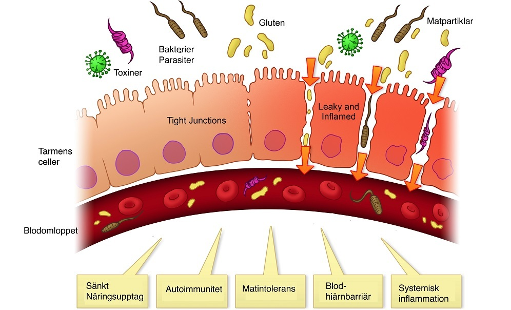 inflammation i tarmarna symtom